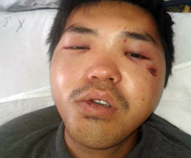 KYRGYZSTAN: Young Convert Suffers Severe Beating