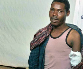 ETHIOPIA: Christian Loses Hand in Beating